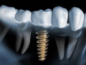 implante funda sobre implante