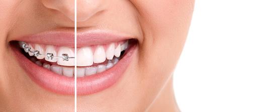 ortodoncia fija con brackets