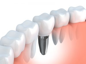 implante dental y corona sobre implante