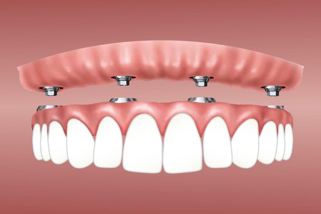 implantes dentales y prótesis sobre implantes
