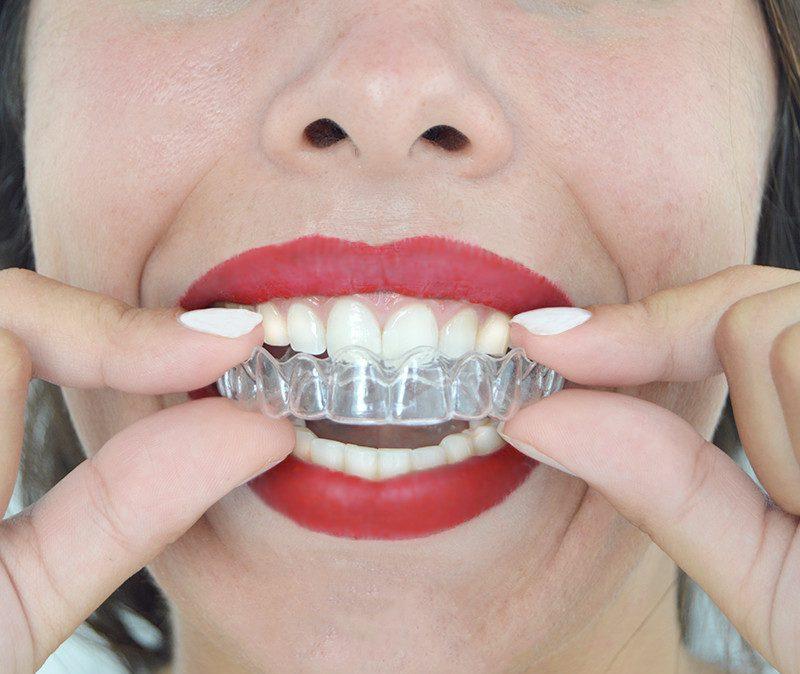 alineador de ortodoncia invisible  removible higiénico cómodo